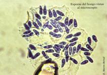 Esporas del hongo vistas al microscopio (Foto: E. Martín Bernal)