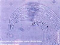 Bursaphelenchus xylophilus macho. Detalle de los órganos reproductores (Foto:Nieves Ibarra Ibañez).